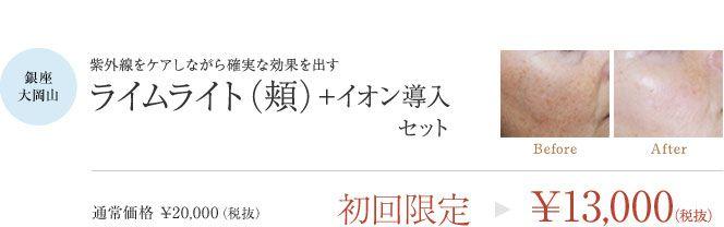 銀座、大岡山院・ライムライト(頬)+イオン導入セット