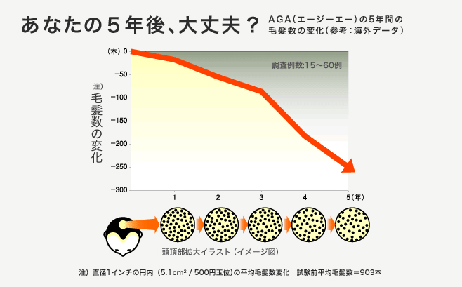 AGAの5年間の毛髪量の変化