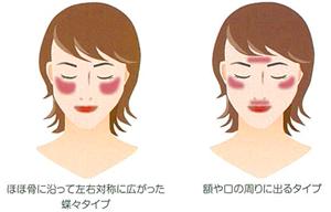 肝斑の特徴例