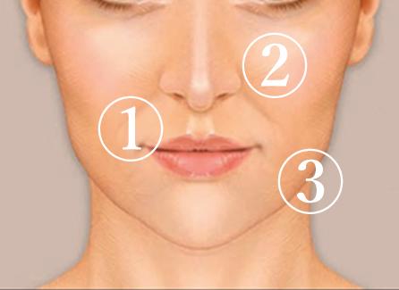 即効型「頬のたるみ」「ほうれい線」解消治療