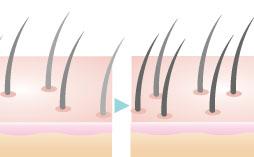 白髪・脱毛症改善治療(白髪注射HAIRLine)