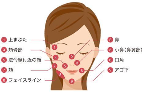 BNLS注射の適用部位 顔
